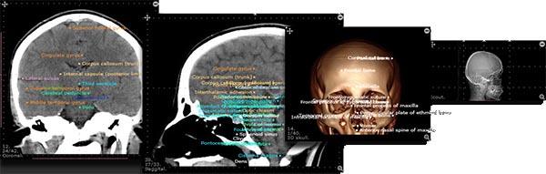 Атлас Анатомии для радиологии