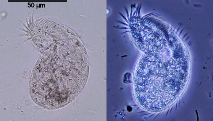 Фазово-контрастные изображения для клинического применения