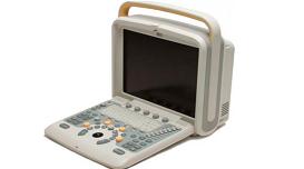 Chison Q5 – портативная ультразвуковая система