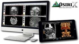 Рабочая станция рентгенолога «OSIRIX»