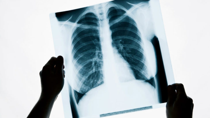 Чем отличается рентген от флюорографии легких и что вреднее