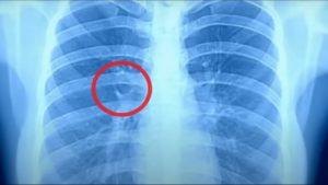 Что показывает рентген лёгких при коронавирусе и как выглядят лёгкие при ковиде?